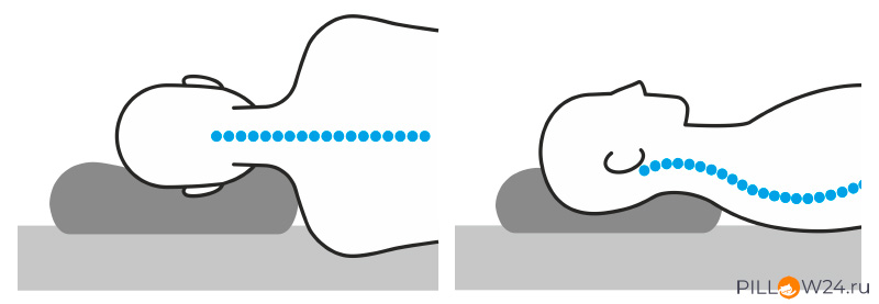 Положение шеи и головы во время сна на ортопедичсекой или анатомической подушках